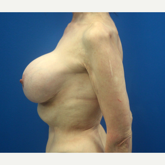 65-74 year old woman treated with Breast Implant Revision after 3366560