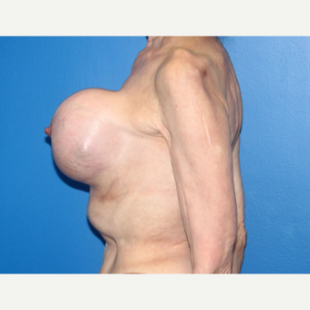 65-74 year old woman treated with Breast Implant Revision before 3366560