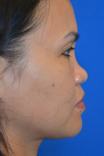 Nonsurgical Rhinoplasty for Bridge and Tip Augmentation/Refinement