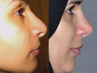 Second Revision for 2 failed rhinoplasties by other surgeons. Complete reconstruction Nosejob before 1521365