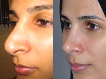 Second Revision for 2 failed rhinoplasties by other surgeons. Complete reconstruction Nosejob after 1521365