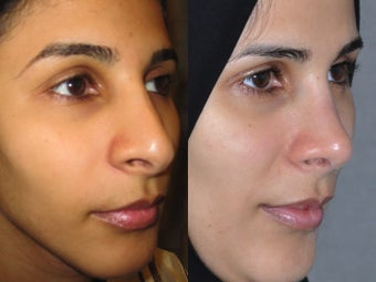 Second Revision for 2 failed rhinoplasties by other surgeons. Complete reconstruction Nosejob 1521365