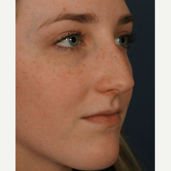 18-24 year old woman treated with Rhinoplasty before 3245071