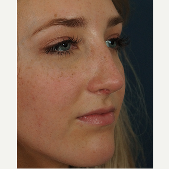 18-24 year old woman treated with Rhinoplasty after 3245071