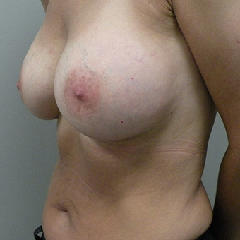 35-44 year old woman treated with Inspira Breast Implants after 3446411