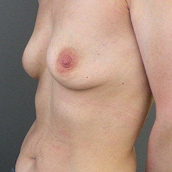 35-44 year old woman treated with Inspira Breast Implants before 3446411
