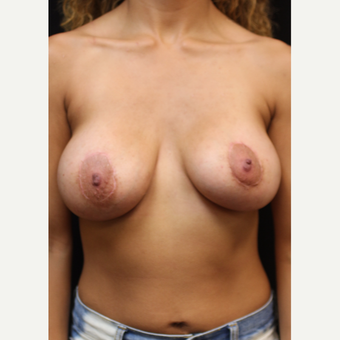 22 year old woman treated with Breast Augmentation after 3064238