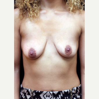 22 year old woman treated with Breast Augmentation before 3064238