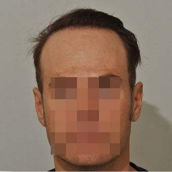 35-44 year old man treated with FUE Hair Transplant after 1631218