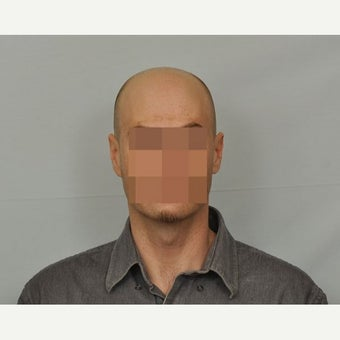 35-44 year old man treated with FUE Hair Transplant before 1631218