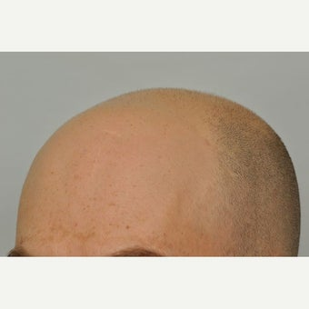 35-44 year old man treated with FUE Hair Transplant 1631218