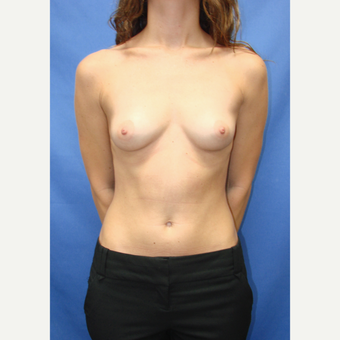 25-34 year old woman treated with Breast Implants before 3100276