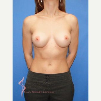 25-34 year old woman treated with Breast Implants after 3100276