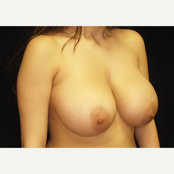 18-24 year old woman treated with Breast Lift with Implants before 3060954