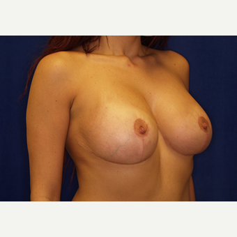 18-24 year old woman treated with Breast Lift with Implants after 3060954