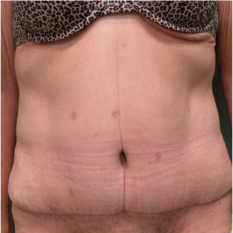 55-64 year old woman treated with Tummy Tuck after 2730311