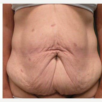 55-64 year old woman treated with Tummy Tuck before 2730311