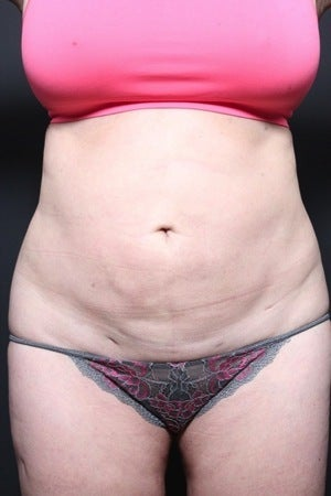 This 45 year old woman underwent a full tummy tuck to repair liposuction irregularity before 1404389