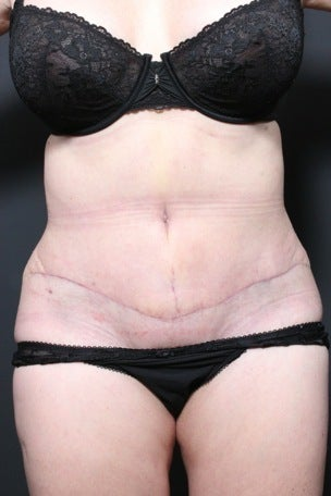 This 45 year old woman underwent a full tummy tuck to repair liposuction irregularity after 1404389