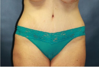 Woman treated with Tummy Tuck after 2759271