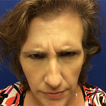 45-54 year old woman treated with Botox before 3405975