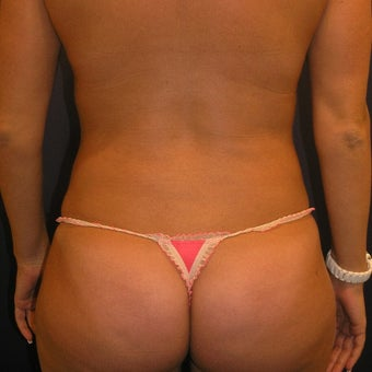 25-34 year old woman treated with Liposuction 1791752