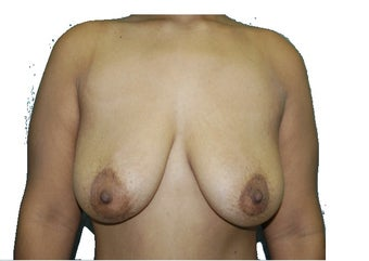 6 Month Post Operative Breast Lift before 1100165