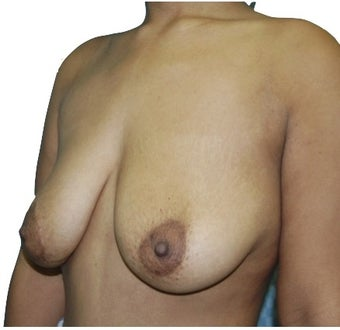 6 Month Post Operative Breast Lift 1100165