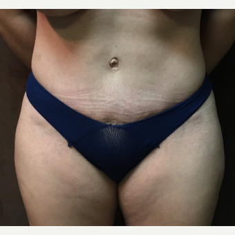 35-44 year old woman treated with Tummy Tuck after 3027781