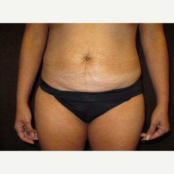 35-44 year old woman treated with Tummy Tuck before 3027781