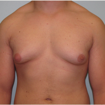 18-24 year old man treated with Male Breast Reduction before 3643990