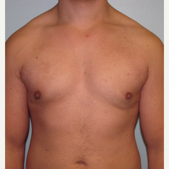 18-24 year old man treated with Male Breast Reduction after 3643990