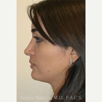 31 year old woman treated with Rhinoplasty after 3462441
