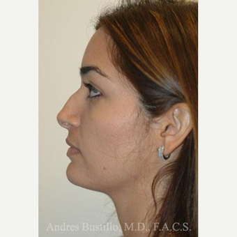 31 year old woman treated with Rhinoplasty before 3462441