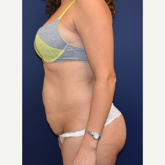 35-44 year old woman treated with Liposuction before 3213953