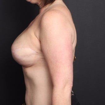 45-54 year old woman treated with Breast Fat Transfer after 2022250