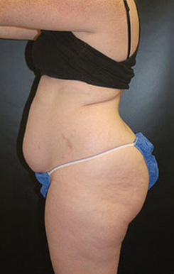 Tummy Tuck before 1147454