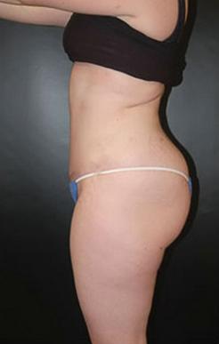 Tummy Tuck after 1147454