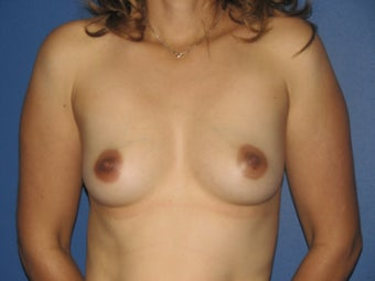 Breast Augmentation before 578462