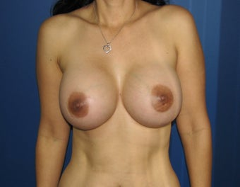 Breast Augmentation after 578462