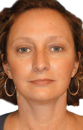 Facelift, Neck liposuction and lift, Endoscopic Browlift, Upper Blepharoplasty (eyelid lift) after 319997