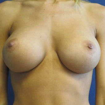 25-34 year old woman treated with Sientra Breast Implants after 1649500