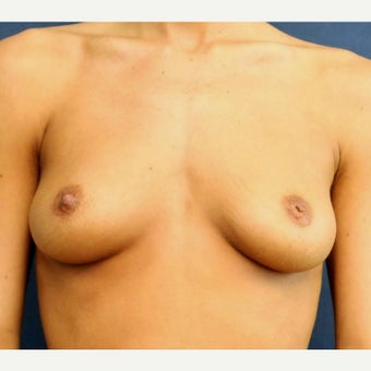 25-34 year old woman treated with Sientra Breast Implants before 1649500