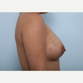Breast Augmentation after 3339922