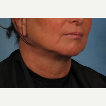 55-64 year old woman treated with Non-Surgical Neck Lift - Precision TX Laser Neck Lift after 2015572