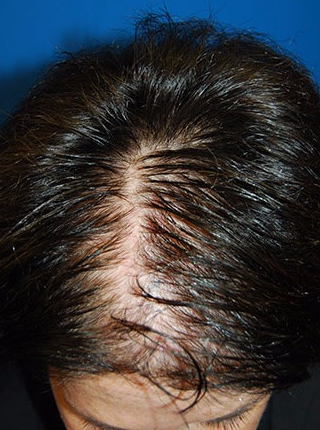55-64 year old woman treated with Hair Transplant