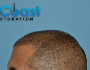 35-44 year old man treated with FUE Hair Transplant after 3604718