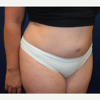 45-54 year old woman treated with Tummy Tuck after 3331677