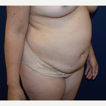 45-54 year old woman treated with Tummy Tuck before 3331677