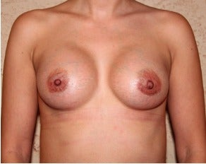 Breast Augmentation after 3318989
